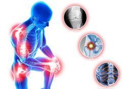 Matériel médical - Orthopédie